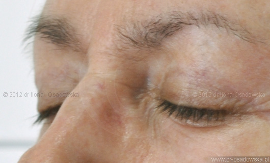 Upper eyelid surgery picture, 11 months after procedure. Laser Blepharoplasty, Elisabeth, 58 y.o.
