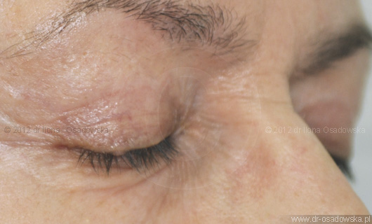 Upper eyelid surgery picture, 6 months after procedure. Laser Blepharoplasty, Elisabeth, 58 y.o.