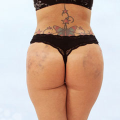 Brazilian butt lifting, Angelina, before and after surgery