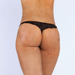 BBL Brazilian Butt Lift, buttocks augmentation with own fat, before and after treatment
