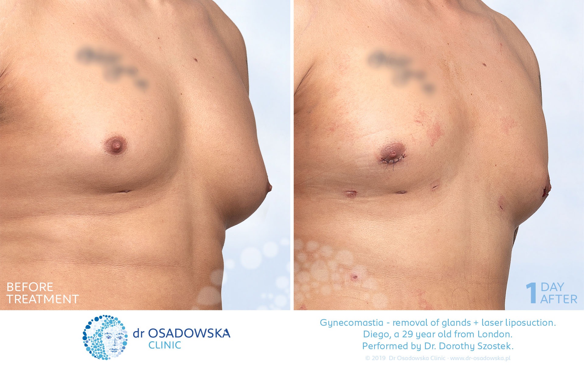 Real Photos Gynecomastia Gland Surgical Removal Liposuction Dr Osadowska Clinic Poland