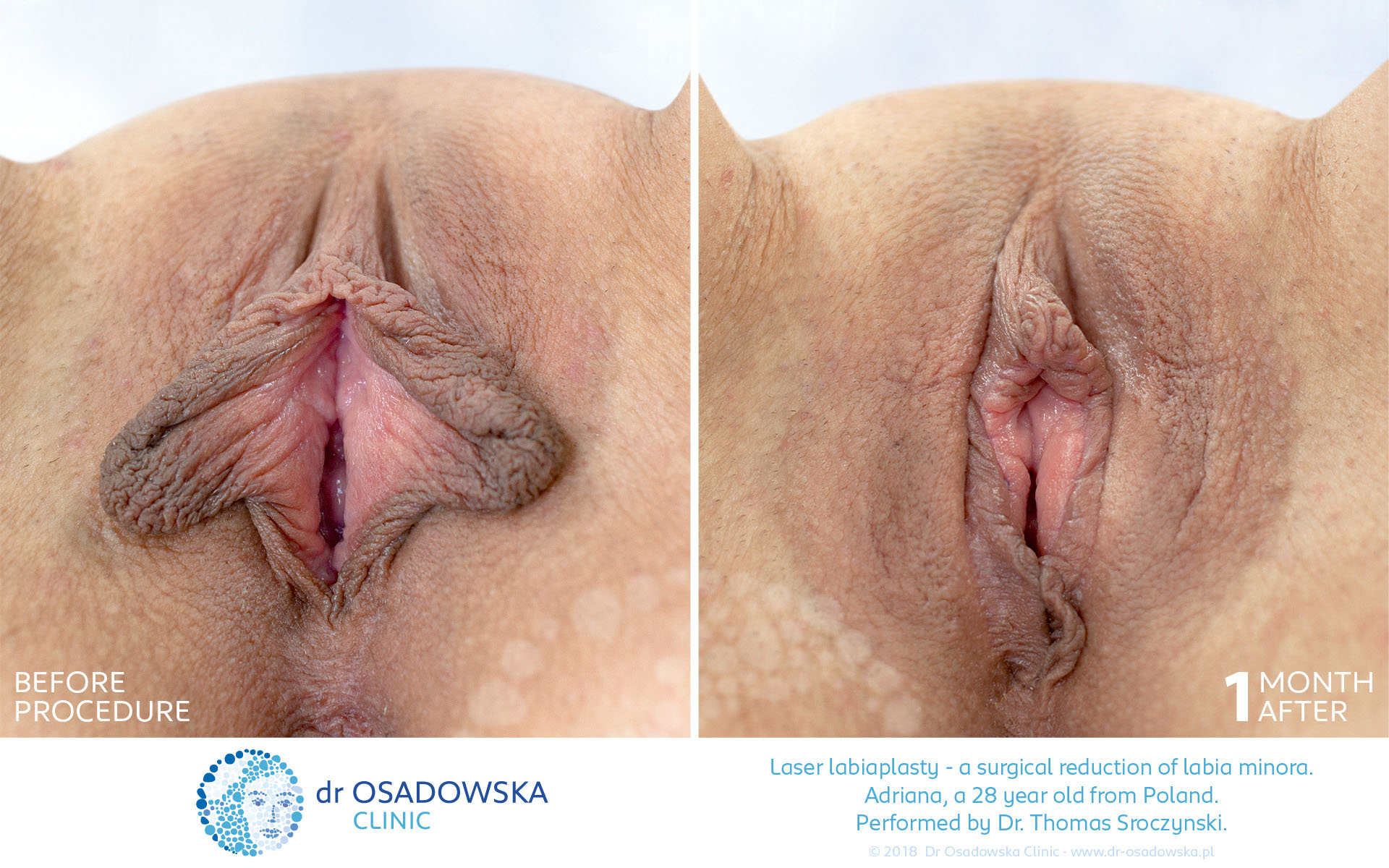 Laser Labiaplasty pictures before and 4 weeks after. View A