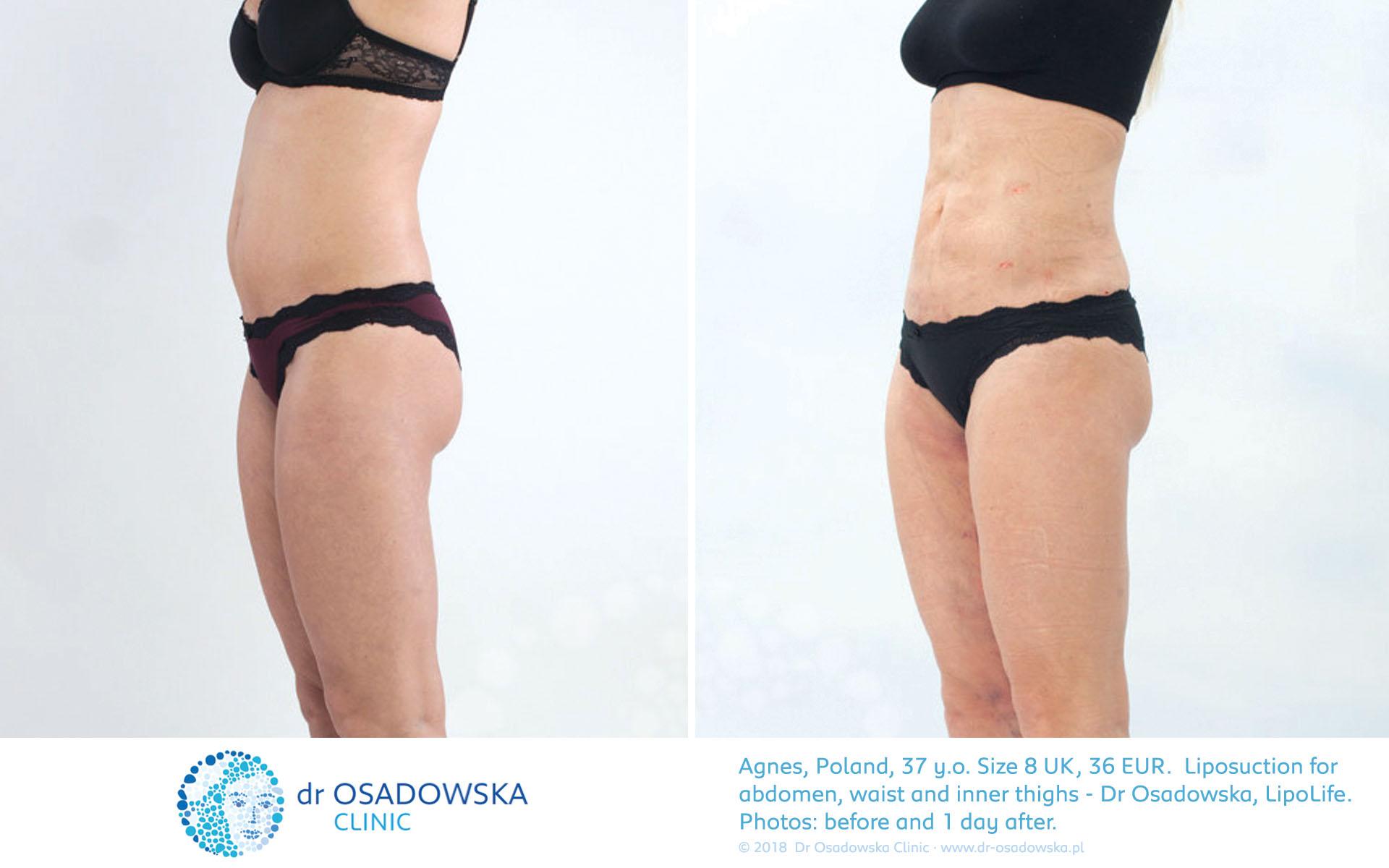Real Photos Liposuction Of Abdomen And Love Handles Agnes 1 Day After Dr Osadowska Clinic Poland