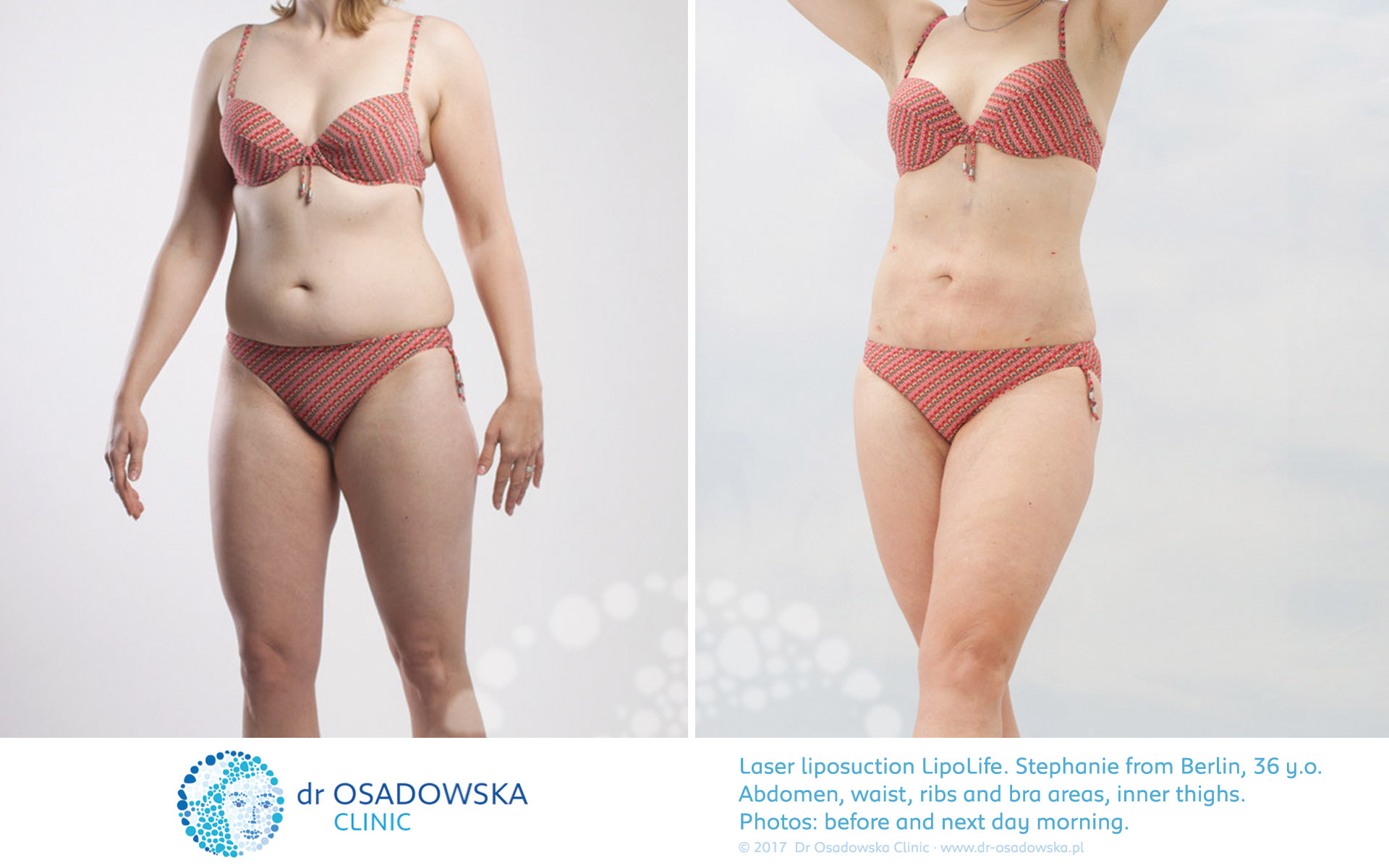 Liposuction LipoLife for abdomen, waist and thighs. Pictures before and 1 day after surgery. Stephanie, a 36 year old from Berlin. View A
