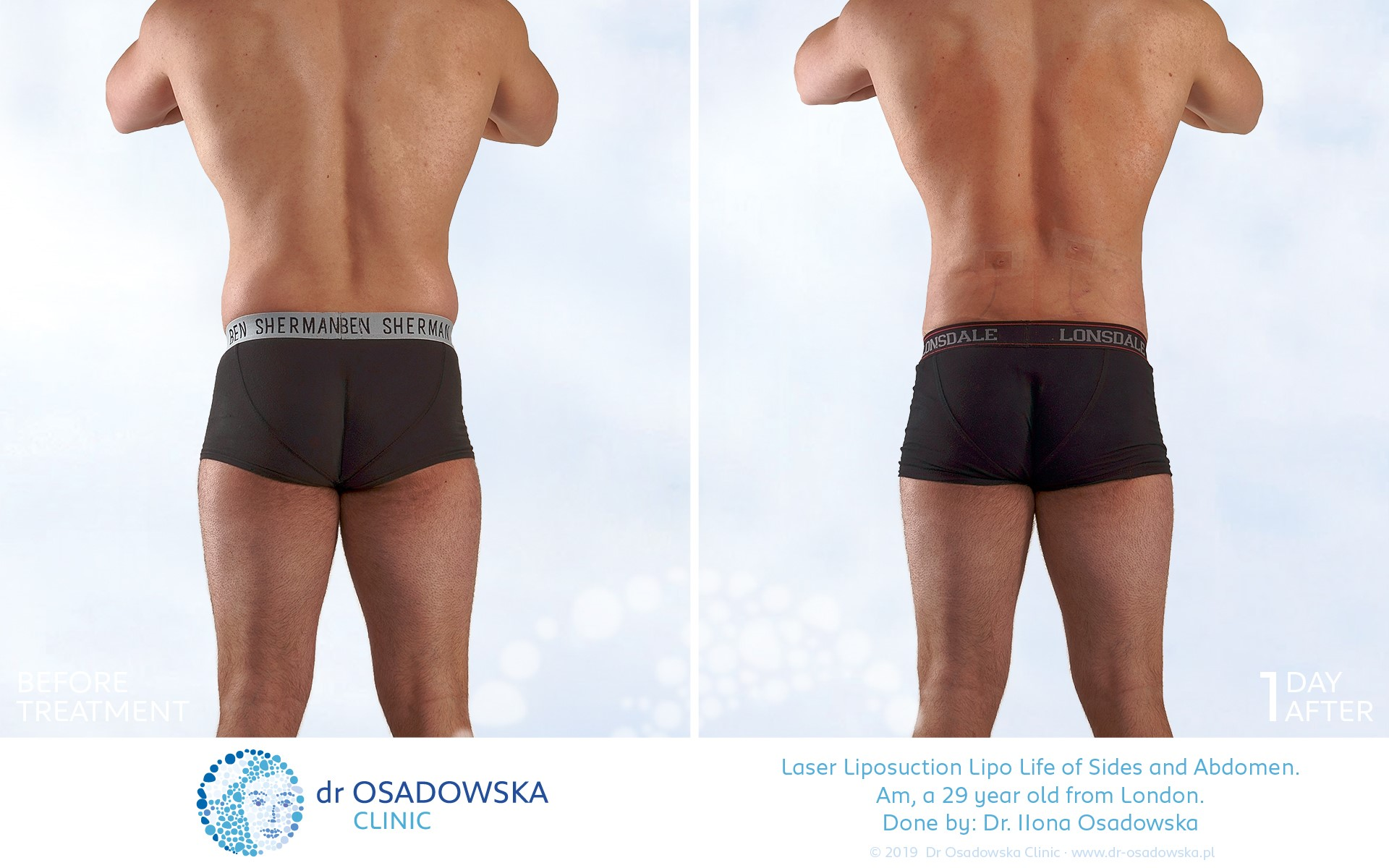 Liposuction abdomen flanks, LipoLife, before after, 3 months, back view
