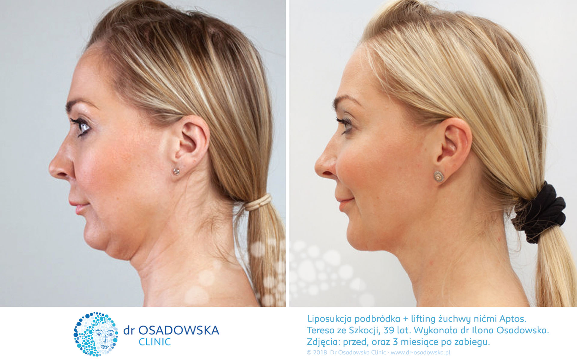 Aptos Threads treatment effect pictures before and 3 months after procedure. Theresa, Scotland