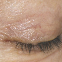 Upper eyelid laser surgery, Elisabeth - 6 and 11 months after.