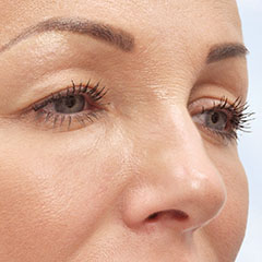 Upper eyelid laser surgery, before and 5 weeks after